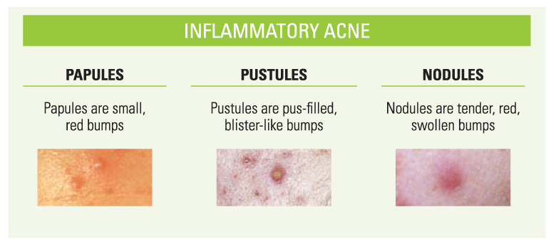 Inflammatory acne. Papules are small, red bumps. Pustules are pus-filled, blister-like bumps. Nodules are tender, red, swollen bumps
