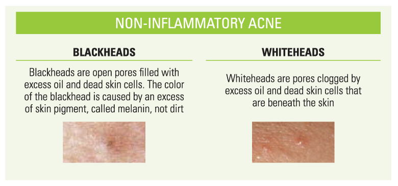 Non-inflammatory acne. Blackheads are open pores filled with excess oil and dead skin cells The color is caused by an excess of skin pigment, called melanin, not dirt. Whiteheads are pores clogged by excess oil and dead skin cells that are beneath the skin