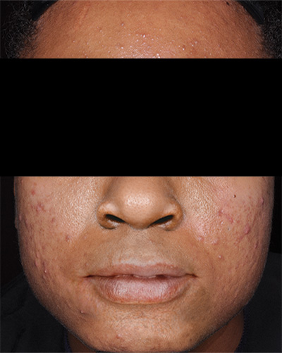 Image of dark-skinned male, face with no facial hair and with acne. Fabior tazarotene foam, clinical studies, reduction in total acne lesions, baseline, actual patient