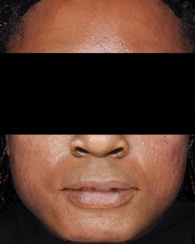 Image of dark-skinned male, face with no facial hair and cleared acne. Fabior tazarotene foam, clinical studies, reduction in total acne lesions, week 12, actual patient