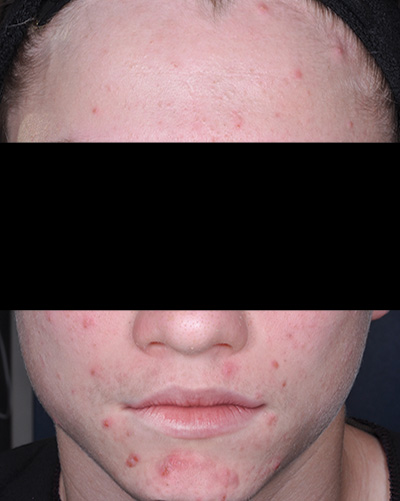 Image of light-skinned young male, face with no facial hair and with acne. Fabior tazarotene foam, clinical studies, reduction in total acne lesions, baseline, actual patient