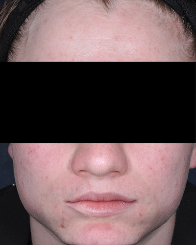 Image of light-skinned young male, face with no facial hair and with cleared acne. Fabior tazarotene foam, clinical studies, reduction in total acne lesions, week 12, actual patient